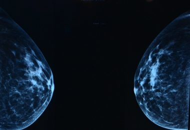 Scan from mammogram procedure
